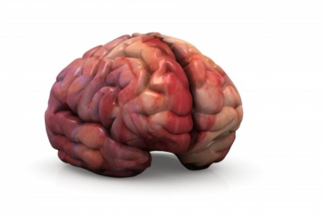 Mozek (ilustrační foto)