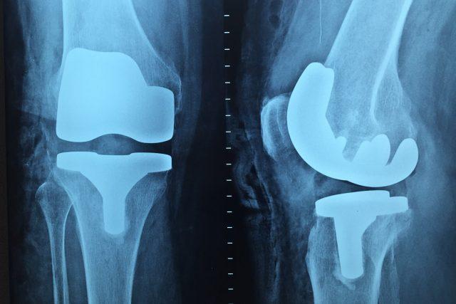 O potížích s klouby hovořila Patricie Strouhalová s ortopedem Petrem Fulínem