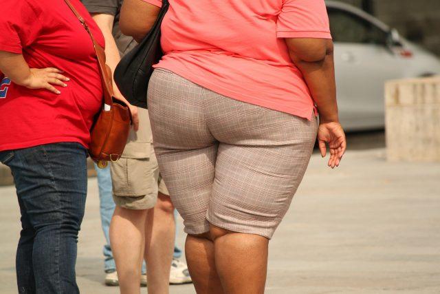 Obezita | foto: Fotobanka Pixabay